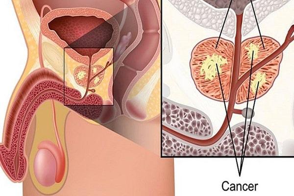 Các chuyên gia nói gì về Tỏi đen trị ung thư, những nghiên cứu còn mơ hồ
